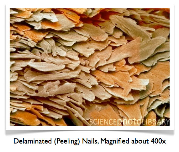 Nail Care – How To Strengthen Brittle Nails   Nail Care HQ